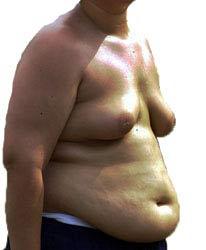 man-boobs-overweight